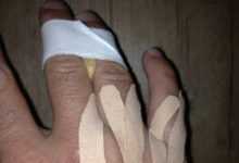 G-Mac, un sonámbulo que se destrozó la mano. Un mes después ganó el torneo de Tiger