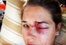 Los bolazos insisten: son el accidente más común jugando al golf
