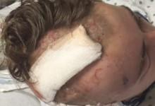 Un adolescente sobrevive a un terrible accidente jugando al golf: 'Fue como si me golpeara un tren'