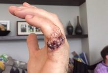 ¡Oops! Donaldson, cerca de perder un dedo de su mano por culpa de una motosierra