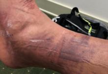 """Finau mostró las """"heridas de guerra"""" tras su incidente en los pares 3 del miércoles. ¡Vaya tobillo!"""